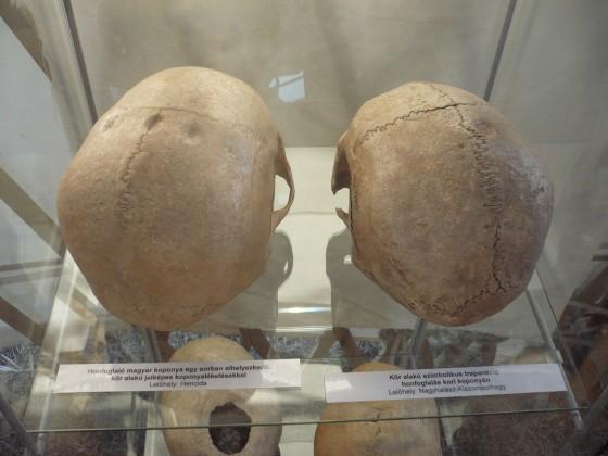 Jelképesen trepanált koponyák a Kurultaj kiállításán - fotó: Bíró Csaba Zoltán