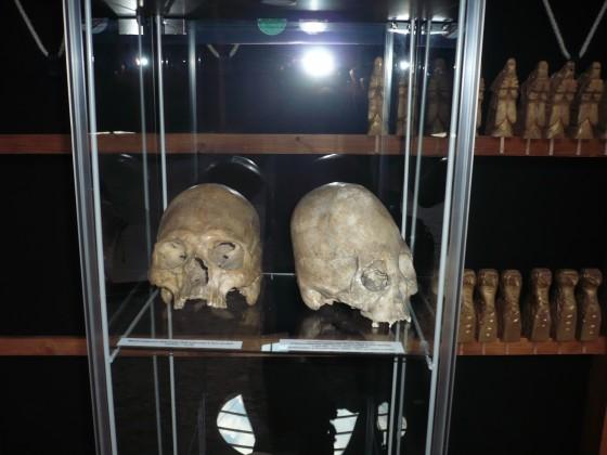 Hun torzított koponyák